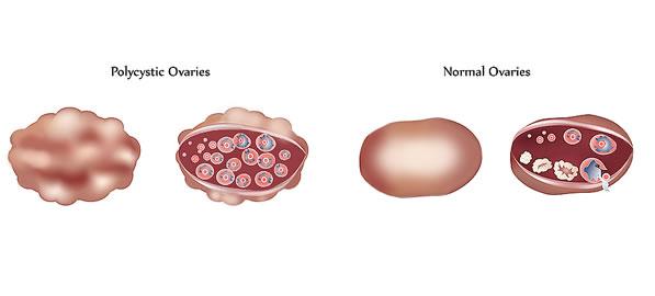 Chisturile Ovariene