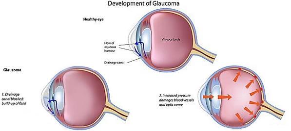 Glaucomul acut