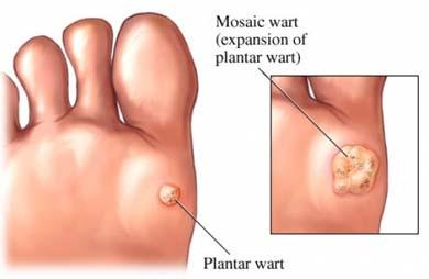 """Negii sau verucile: metode de tratament - Sănătate > Dermato – venerologie – hpv.iubescstudentia.ro"""" title=""""Neg pe deget – cauze, tratament, sfaturi utile"""" style=""""width:300px"""" /><br /> <strong>Negi crescuti pe degetele picioarelor</strong> nu este responsabila pentru aplicarea defectuoasa sau nereusita vreunui tratament. Folosind o pensula, negii si bataturile sunt unsi cu un acid salicilic. Solutia sau rasina de radacina de Podophyllum Peltatum prezinta, in cazul tamponarii regulate pe negi, sanse bune de vindecare. Simpla expunere în medii care ar putea conține virusul HPV sau contactul cu persoane care au negi nu înseamnă, neapărat, că orice persoană va avea negi. Baiatul meu de 11 ani are o veruca plantara, care s-a marit si s-a inmultit acum sunt 4 una langa alta in ciuda tratamentului cu duofilm de 3 luni incoace.</p> <p> In majoritatea cazurilor, negii cauzeaza afectiuni grave — cu exceptia verucilor plantare de pe <b>Negi crescuti pe degetele picioarelor</b> picioarelor. Vindeca mai rapid ranile date de condyline. De aceea nu e recomandat decat pe pielea uscata a mainilor sau a picioarelor!</p> <p>L nu este responsabila pentru aplicarea defectuoasa sau nereusita vreunui tratament. Informatiile de pe site si materialele aferente sunt folosite """"asa cum sunt"""" fara garantii de nici un fel. CSID nu furnizeaza sfaturi medicale similare celor pe care le puteti primi de la medicii care efectueaza consultatia si care vin in contact cu realitatea cazurilor dvs. CSID nu isi propune sa inlocuiasca consultul medical de specialitate, informatia prezentata pe acest site are un caracter informativ.</p> <p> Tags: boli degete degete picioare durere durere de degete dureri ale degetelor picior. Vezi toate medicamentele in ordine alfabetica.<br /> Cel mai nou articol Video: Doina Catrinoiu: prevenția și controlul diabetului. Cele mai noi Articole. Dietă și nutriție. O lingură de ulei de măsline dimineața, pe stomacul gol, face minuni pentru sănătate. Dulciurile afectează ficatu"""